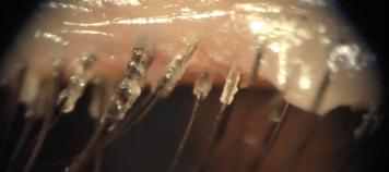 nuzyca demodekoza