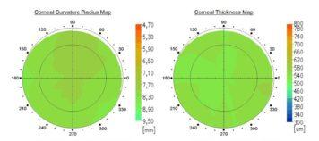 pachymetria laserowa